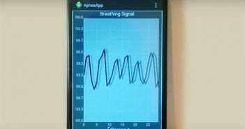 Breathing signals, as tracked by ApneaApp